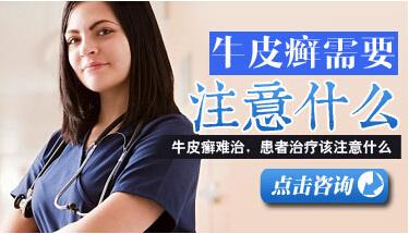 中医治疗牛皮癣是最佳方法
